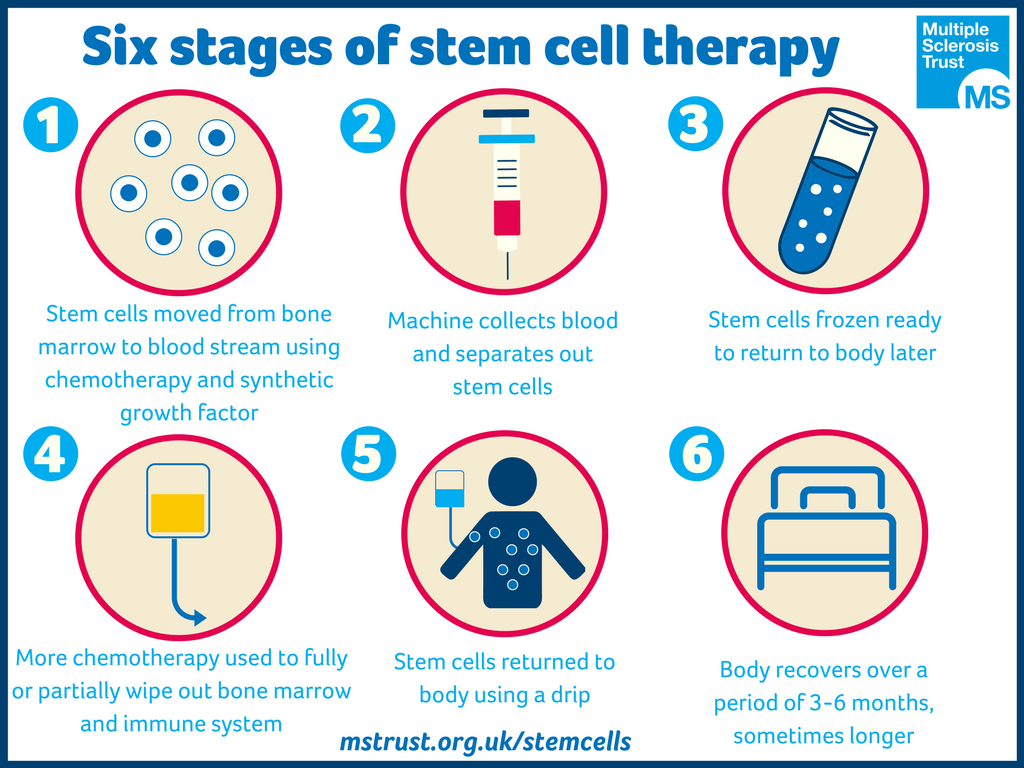 Stem cell infographic showing the six stages of stem cell therapy.