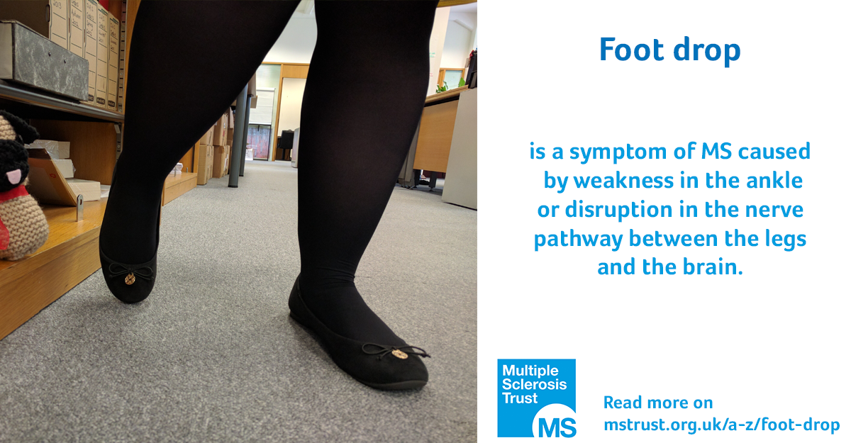 Foot drop | MS Trust