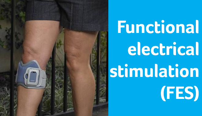 Image of Functional electrical stimulation (FES) on a leg