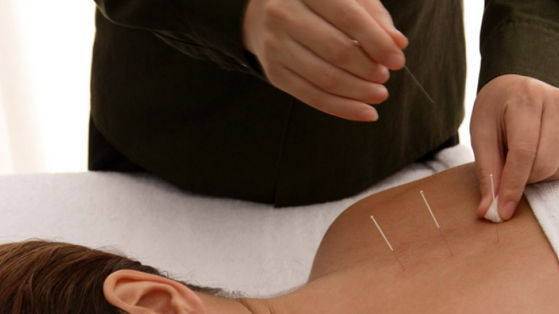 A woman receiving acupuncture