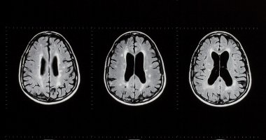Machine learning identifies new subtypes of MS from MRI scans